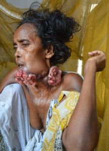 A woman suffering from Cancer